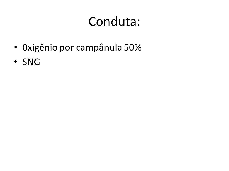Conduta: 0xigênio por campânula 50% SNG