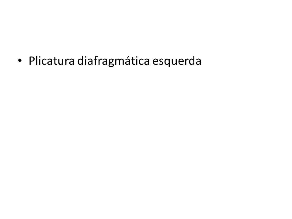 Plicatura diafragmática esquerda