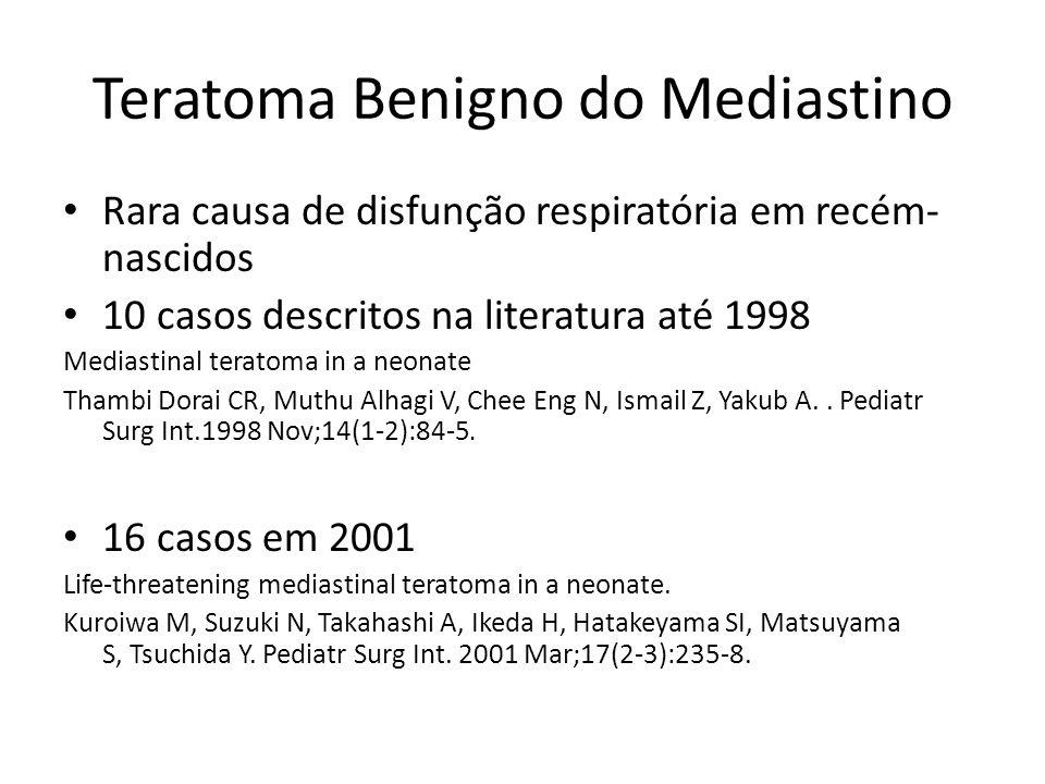 Teratoma Benigno do Mediastino Rara causa de disfunção respiratória em recém- nascidos 10 casos descritos na literatura até 1998 Mediastinal teratoma in a neonate Thambi Dorai CR, Muthu Alhagi V, Chee Eng N, Ismail Z, Yakub A..