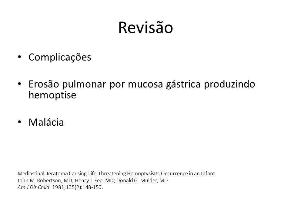 Revisão Complicações Erosão pulmonar por mucosa gástrica produzindo hemoptise Malácia Mediastinal Teratoma Causing Life-Threatening HemoptysisIts Occurrence in an Infant John M.