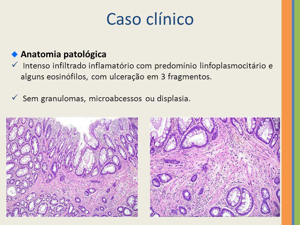Anatomia patológica Intenso infiltrado inflamatório com predomínio linfoplasmocitário e alguns eosinófilos, com ulceração em 3 fragmentos. Sem granulo
