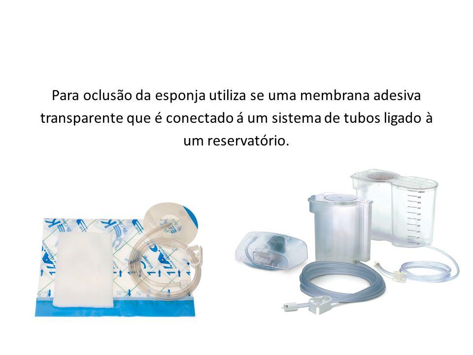 Para oclusão da esponja utiliza se uma membrana adesiva transparente que é conectado á um sistema de tubos ligado à um reservatório.