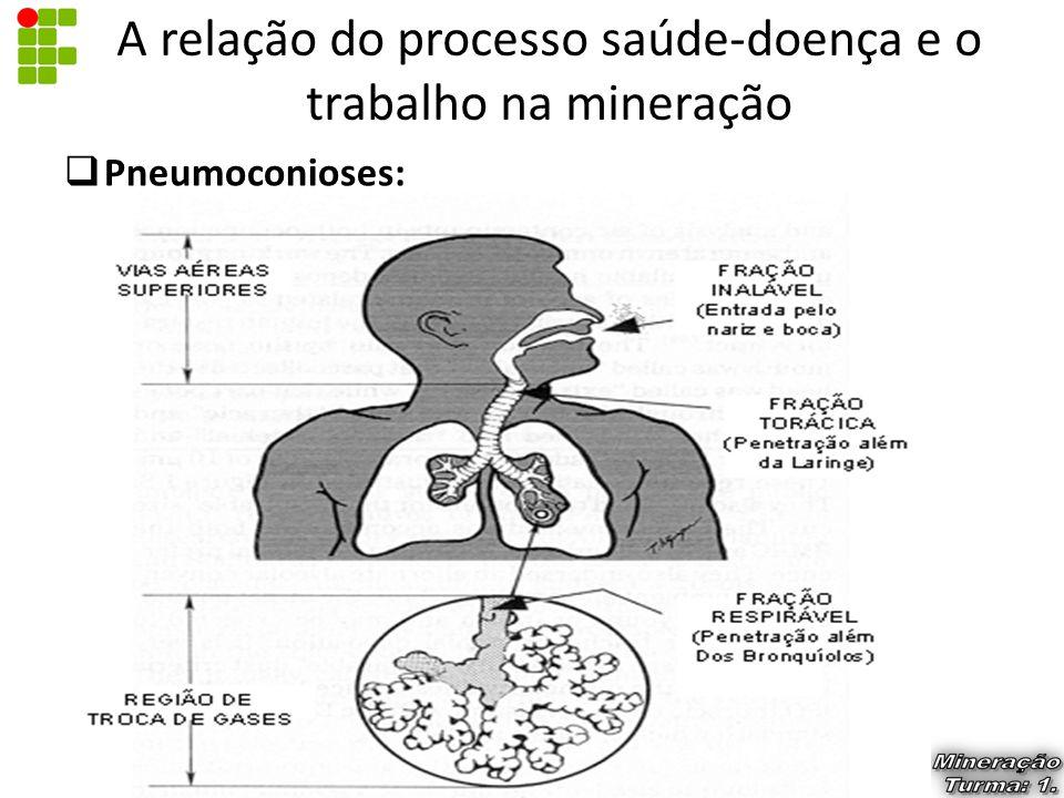  Pneumoconioses: A relação do processo saúde-doença e o trabalho na mineração