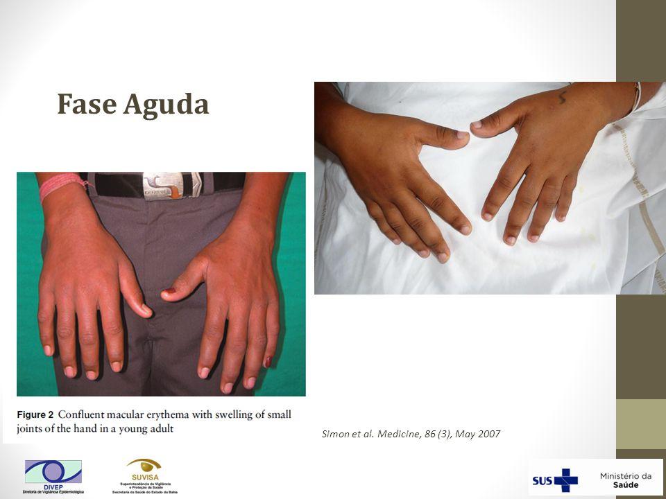 Simon et al. Medicine, 86 (3), May 2007 Fase Aguda