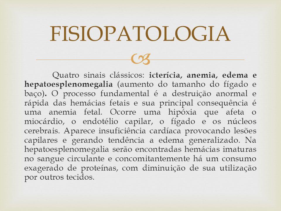  Quatro sinais clássicos: icterícia, anemia, edema e hepatoesplenomegalia (aumento do tamanho do fígado e baço). O processo fundamental é a destruiçã