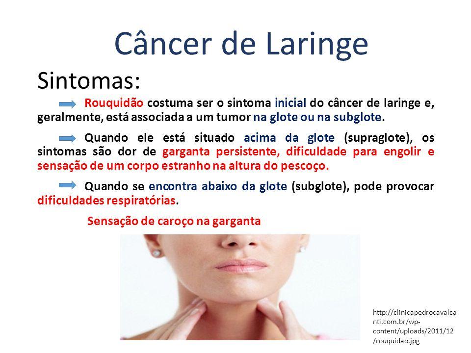 Sintomas: Rouquidão costuma ser o sintoma inicial do câncer de laringe e, geralmente, está associada a um tumor na glote ou na subglote.