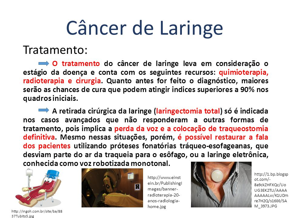 Tratamento: O tratamento do câncer de laringe leva em consideração o estágio da doença e conta com os seguintes recursos: quimioterapia, radioterapia e cirurgia.