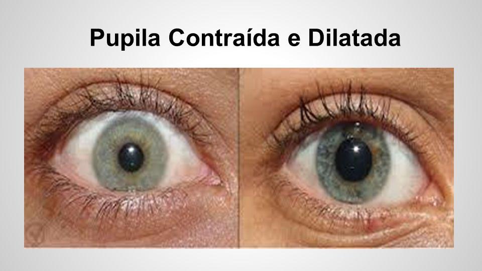 Pupila Contraída e Dilatada