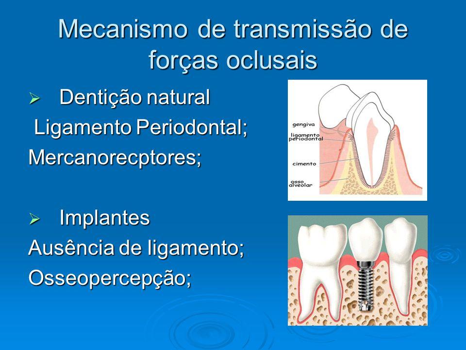 fundamentos da prtese sobre implantes