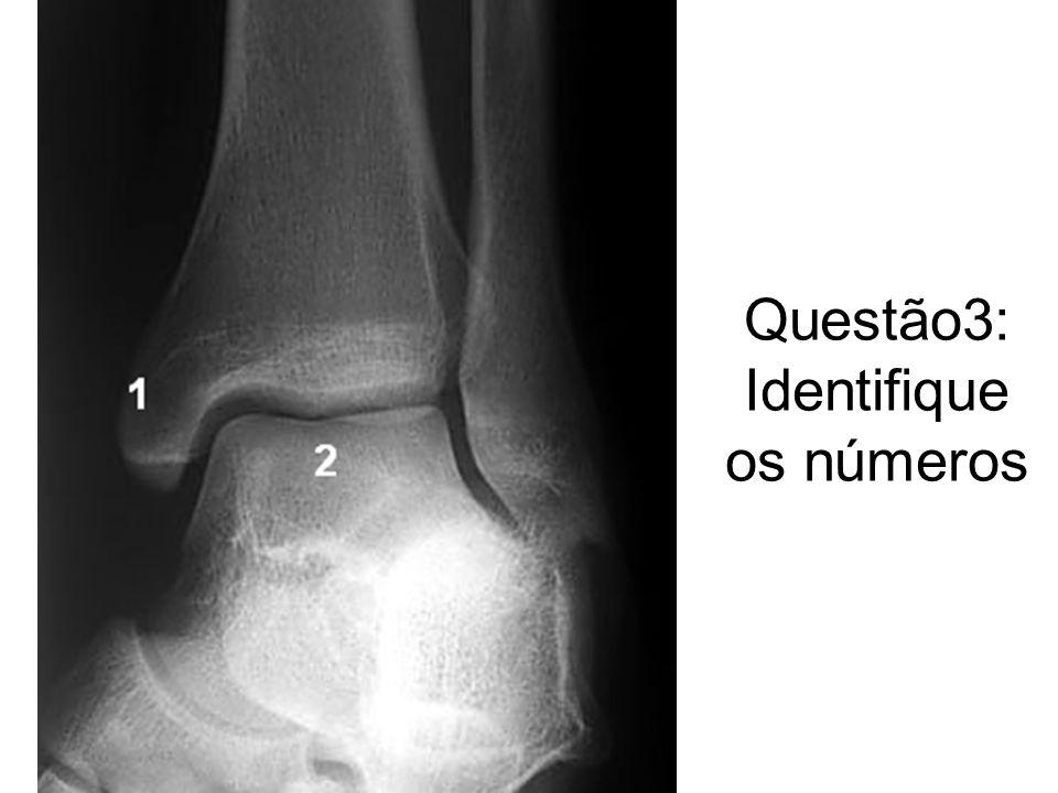 Prova Anatomia Radiológica esqueleto apendicular Turma R28 – Profª ...